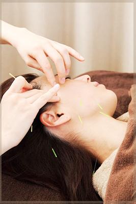 鍼の美容効果